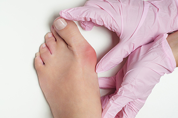 charlotte foot specialist answers what causes bunions