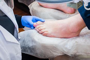 ingrown toenails in charlotte nc
