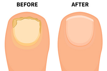 toenail fungus treatment in charlotte nc
